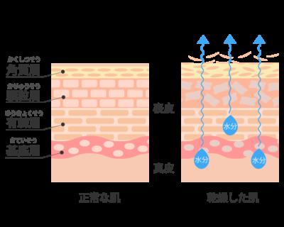 乾燥肌断面図